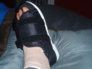 foot surgery image 2016
