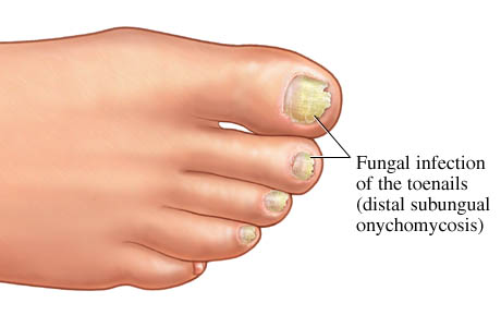 fungal nails for website.3